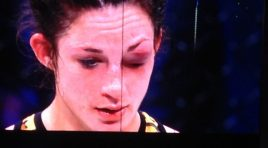 Brooke Mayo Looses Fight to Veta Artega by Doctor Stoppage at Bellator